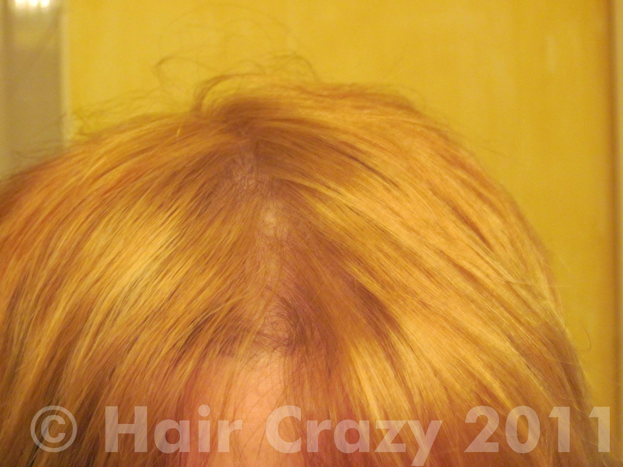 Bleached hair need help with toner forums haircrazy this is my hair after several bleaches i was using one of those little packets urmus Choice Image