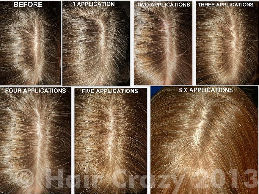Sun In Hair Lightener Forums Haircrazy Com